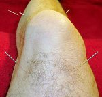 Knee Acupuncture